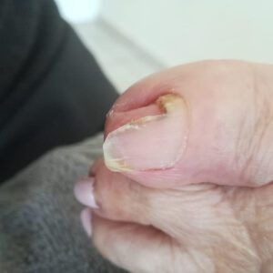 Problematic Toe Nails